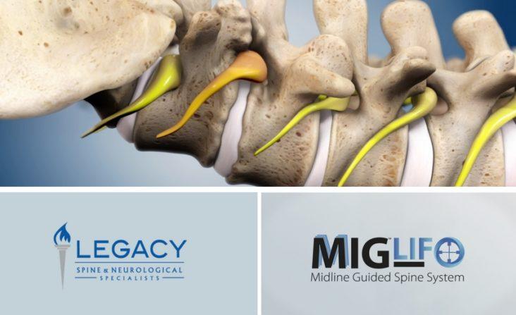 MIG-LIF Procedure