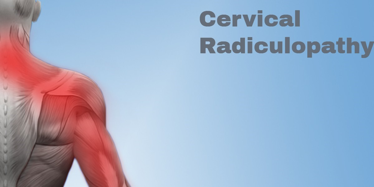 Cervical Radiculopathy Symptoms Amp Treatments Legacy