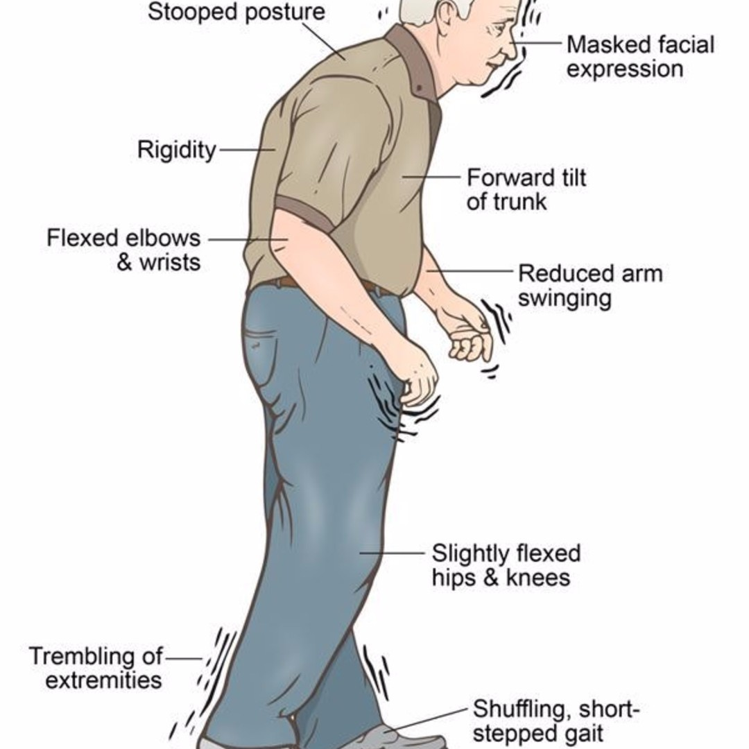 Parkinson S Disease: Legacy Spine & Neurological Specialists