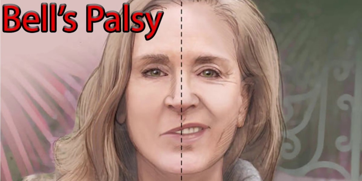 Bell S Palsy Legacy Spine Neurological Specialists